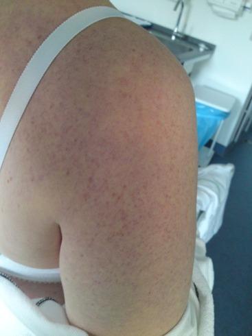 små blodsprængninger på armene